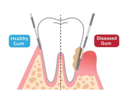 Periodontal Disease Is Linked To Systemic Diseases