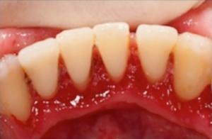 irritated gums