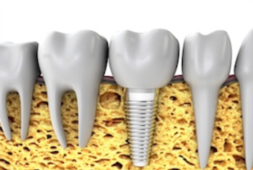 The Health And Beauty Consequences Of Missing Teeth