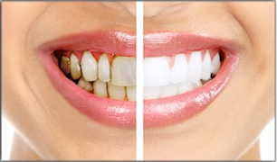 Whitening For 3 Types Of Tooth Stains