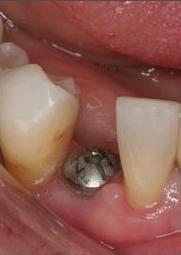 Implants At Falls Pointe Dental