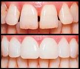 teeth with veneers and without veneers