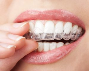 Facts for Patients Interested in Getting Invisalign